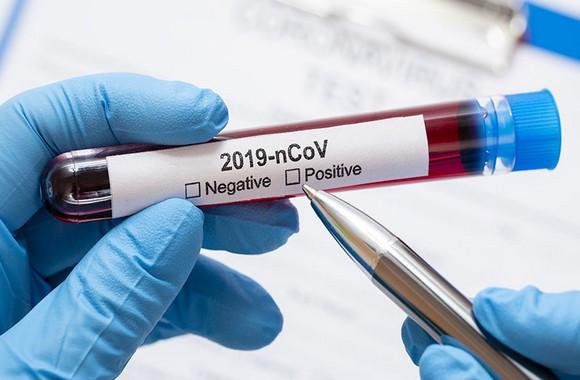 Coronavirus: 178 nouveaux cas, 159 guérisons et 2 décès ces dernières 24h en Algérie - Algérie