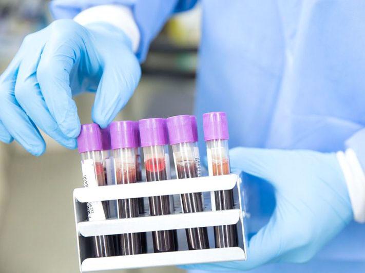 Coronavirus: 161 nouveaux cas, 132 guérisons et 4 décès ces dernières 24 heures en Algérie - Algérie