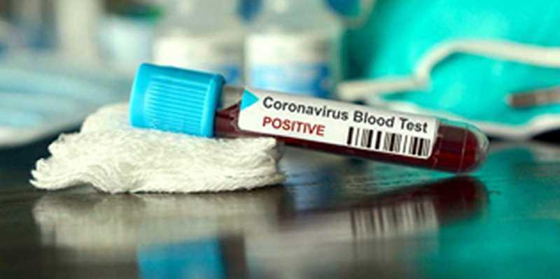 Coronavirus en Algérie:168 nouveaux cas, 148 guérisons et 6 décès ces dernières 24h - Algérie