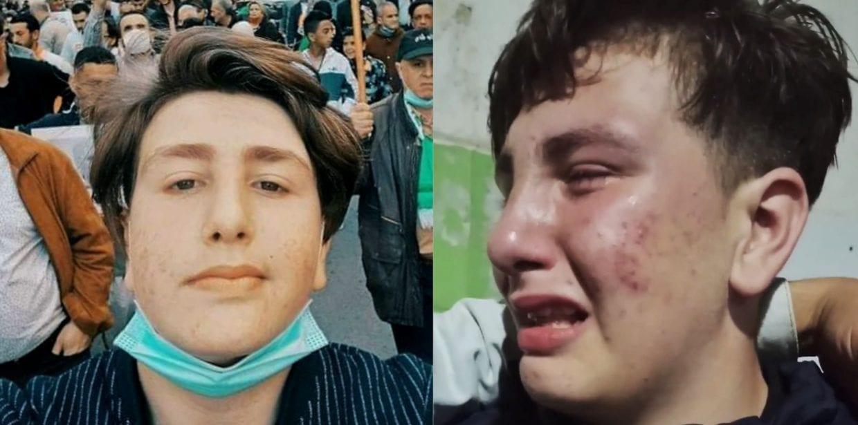 """بيان من أمن العاصمة حول القاصر """"سعيد شتوان"""" - الجزائر"""